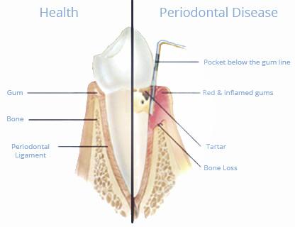 periodontal-treatments-3