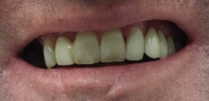 All on four denture alternative before