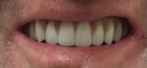 All on four denture alternative after