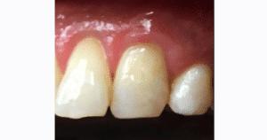 Gum graft after