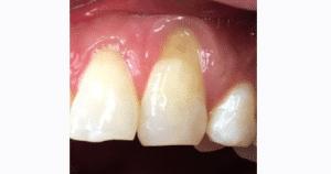 Gum graft before