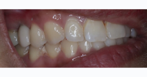 Implant crown before and after
