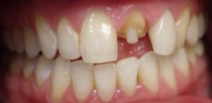 Tooth before crown