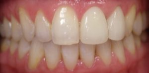 Tooth after crown