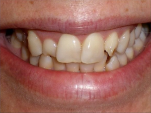 Veneers and gum lift before