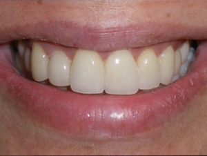 Veneers and gum lift after