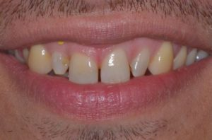 Veneers, Invisalign, and gum lift befre