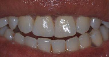 Emergency Dental Care, 7 Days a Week | CPW Dentistry | UWS | NYC
