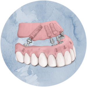 Illustration of All-on-Four Denture alternative