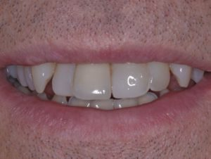 Implant 8 and veneers before