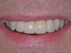 Implant 8 and veneers after