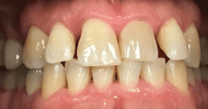 Invisalign and implants before photograph
