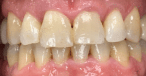 Invisalign and implants after photograph