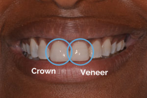 Crown vs veneer before with text